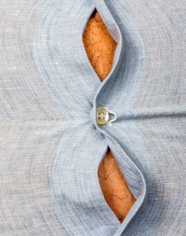 Obesity and Prader-Willi Syndrome