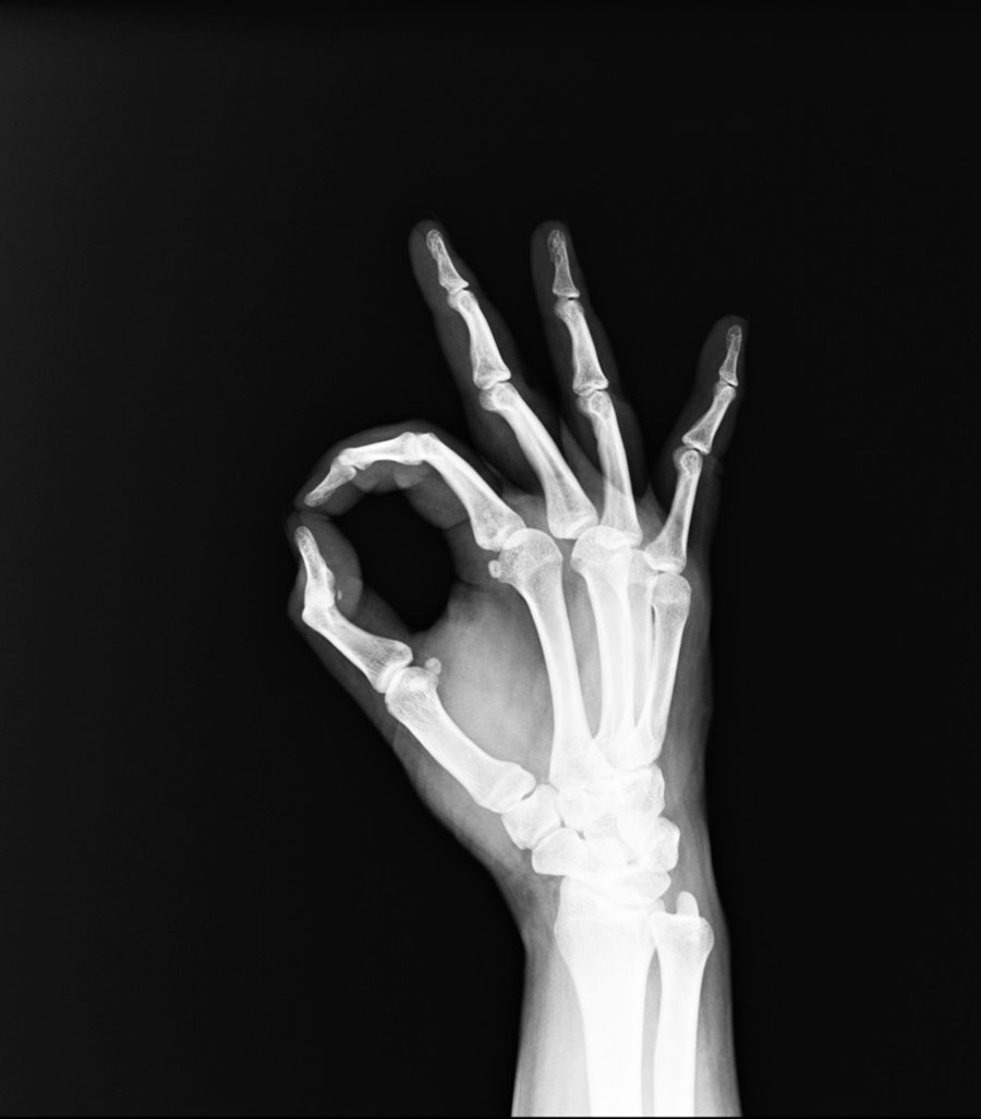 Paget's disease of bone and other bone diseases